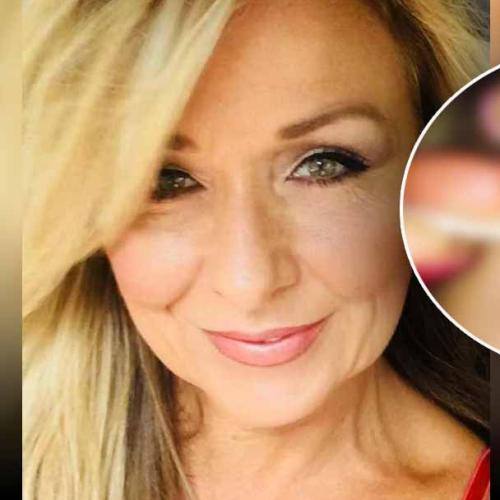 Woman Nearly Blinded After Never Washing Off Her Mascara