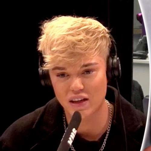 Jack Vidgen Opens Up About Why He Got Cosmetic Enhancements