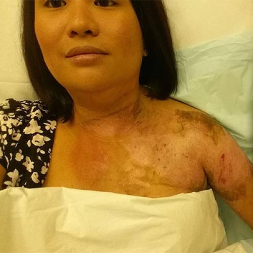 Aussie Mum's Horrific Burns After Kitchen Item Explodes