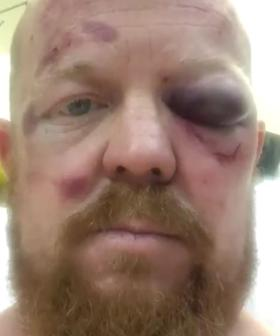 NSW Paramedic Bashed By Teenagers During Charity Bike Ride