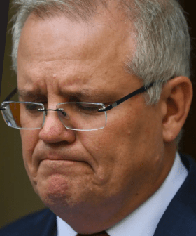 Was This Too Far? ScoMo Gets Burned On Live Radio About Hair Loss!