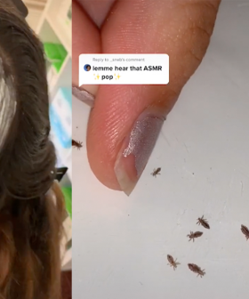 People Have Become Obsessed With Lice Popping Thanks To This Sydney Woman
