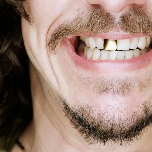 Having Dreams Featuring Teeth Falling Out Or Crumbling? Find Out What It Means Here!