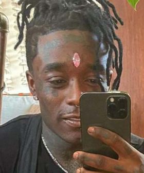Rapper Has $32Million Diamond Ripped Out of His Forehead During Concert